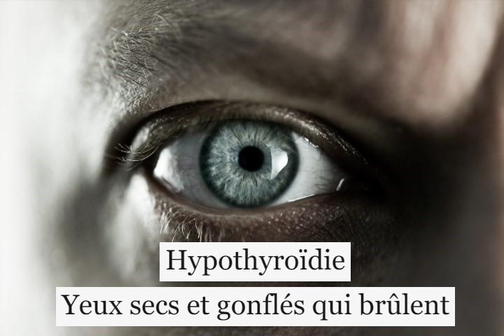 Hypothyroïdie: yeux secs et gonflés qui brûlent